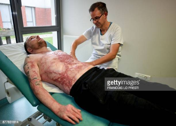 Franck Dufourmantelle 33yearold who had suffered burns over 95 percent of his body and was saved by a skin transplant from his identical twin Eric in...