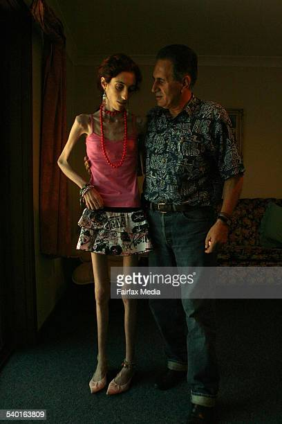 Frank Dimauros with his daughter Catena Dimauros, who suffers from anorexia and weighs a mere 26 kilograms, 5 January 2007. SHD Picture by JACKY...