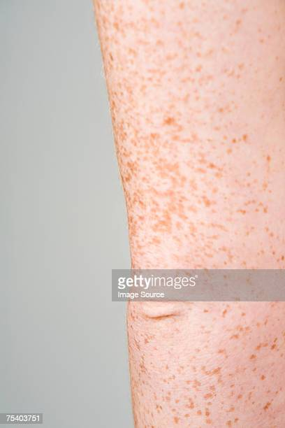Freckled elbow