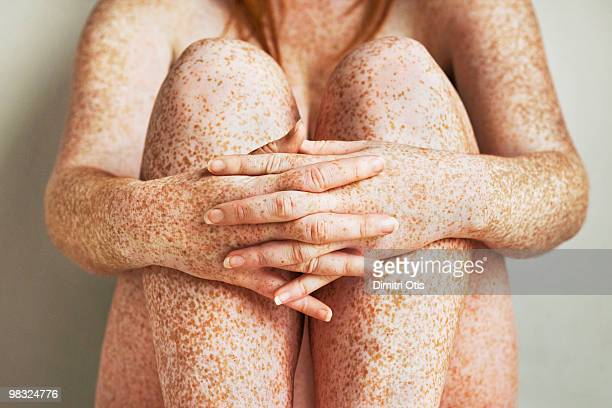 Freckled girls hands, arms and legs, close up
