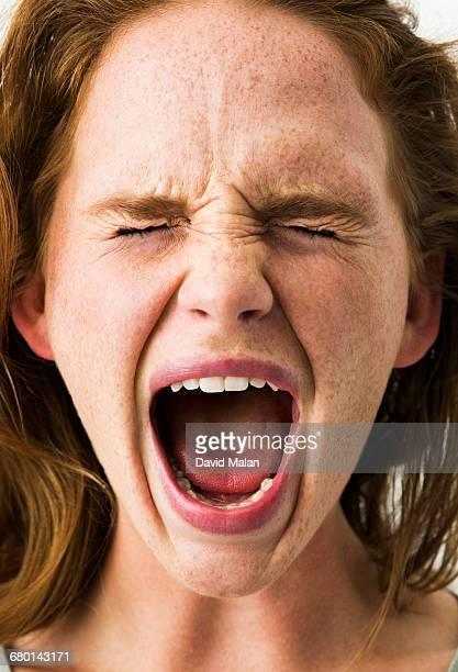 freckled young woman screaming. - gillen stockfoto's en -beelden