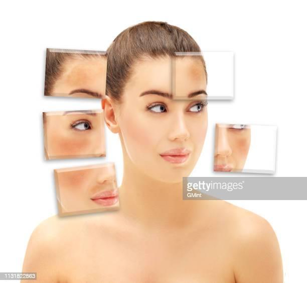 sardas, manchas escuras, hiperpigmentação (melasma ou cloasma) - melanina - fotografias e filmes do acervo