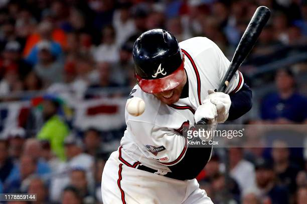 Freddie Freeman of the Atlanta Braves is hit by the pitch against the St Louis Cardinals during the seventh inning in game one of the National League...