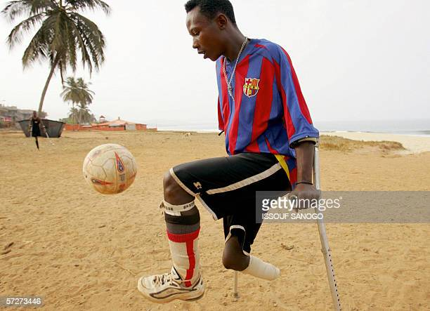 Junior Camara aka 'Samuel Eto'o' of the Sierra Leone civil war amputees football team eyes teh ball 07 April 2006 at a beach in Freetown Former...