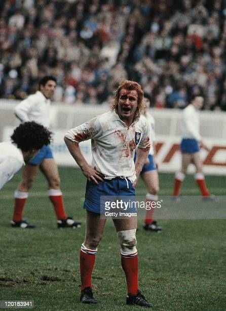 French captain Jean-Pierre Rives covered in blood after a collision with team-mate Serge Blanco during the Five Nations Championship game against...