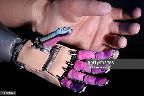 French company RECFrance have provided the first patient with their Bionics TITANIUM hand made with Titanium Aluminium and Kevlar on January 5 2015...