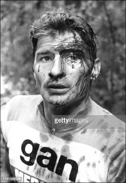 French cyclist Raymond Poulidor is injured after a fall in the descent of the Portet d'Aspet pass on July 15 1973 in the 13th stage of the Tour de...