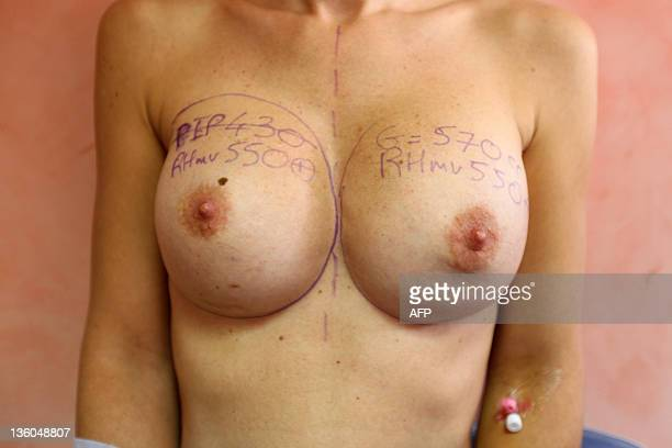 French Doctor Denis Boucq draws before removing a breast implant produced by PIP company during a surgical operation on December 21 2011 in Nice...