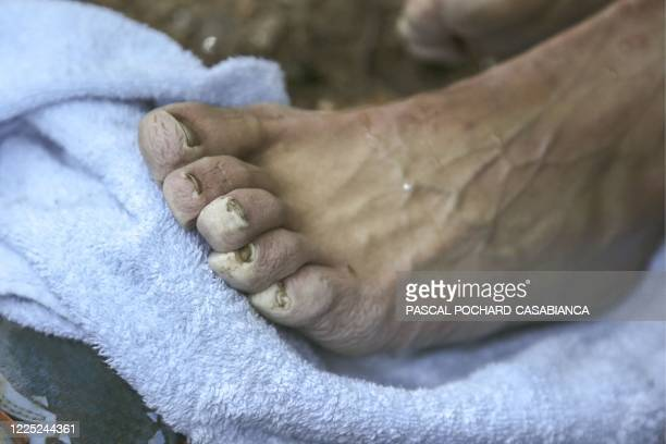 French elite athlete who specialises in trail and mountain running Xavier Thevenard, 32-years-old, has his feet checked by his support team on day...