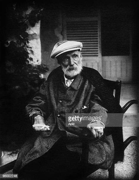 French painter Pierre Auguste Renoir c 1918 showing his arthritis and the tape he used to strap his brush to his hand