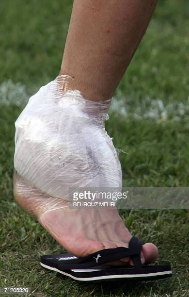 Friedrichshafen, GERMANY: Picture shows right leg of Iranian midfielder Ali Karimi, wrapped by ice on his ankle after a training session in...