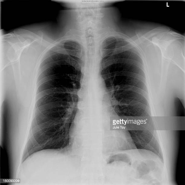 Front Chest x-ray