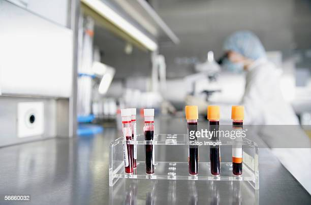 Front view of test tubes containing blood samples