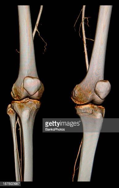 3 D de face, dans le Connecticut, de scanner les genoux avec artères fémorale