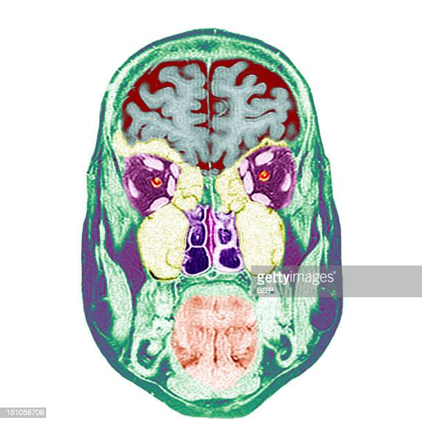 Frontal Section Cf Image 0211206 For The Numbers 1 Brain 2 Eyeballs 3 Optic Nerves 4 Oculo Motor Muscles Superior Right Inferior Right Lateral Right...