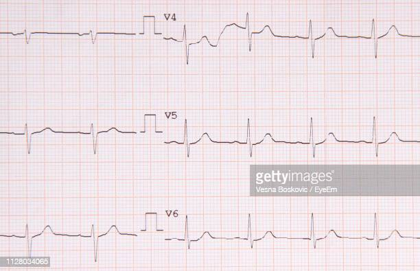 full frame shot of ecg report - pulse trace stock pictures, royalty-free photos & images