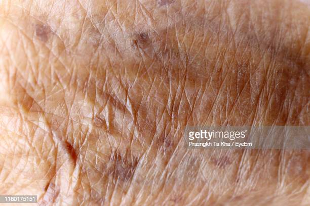 full frame shot of human skin - skin texture stock pictures, royalty-free photos & images