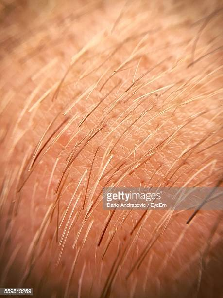 Full Frame Shot Of Human Skin