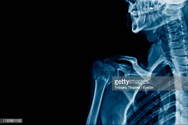 full frame shot of x-ray - human bone stock pictures, royalty-free photos & images