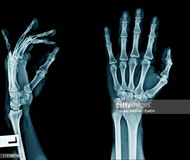 full frame shot of x-ray - x ray image stock pictures, royalty-free photos & images