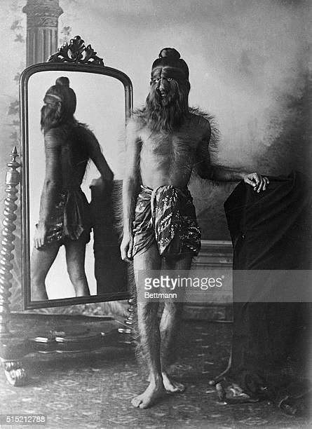 Full length standing portrait of Noung Phaset member of Burmese hairy family The young man has heavy hair growth all over his body especially on his...