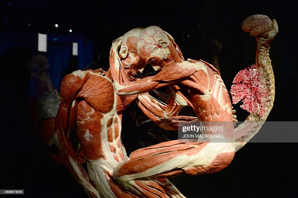 Full Plastinated Bodies Of Two Persons Embracing Each Other Is On