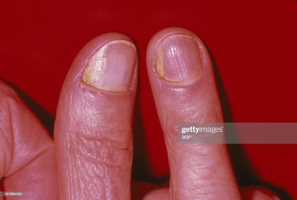 Onychomycosis Pictures | Getty Images