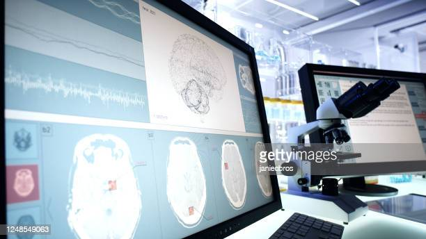 futuristic laboratory equipment. brainwave scanning research on computer screens - eeg stock pictures, royalty-free photos & images