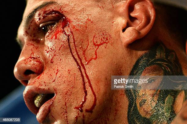 Gabriel Rosado bleeds in his corner between rounds against Jermell Charlo in their WBC Continental Americas Title match at the DC Armory on January...