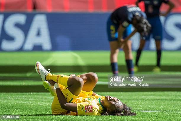 Gabrielle Onguene of team Cameroon cries out after an injury n 2015 women's World Cup Soccer in Vancouver during the first round action between...