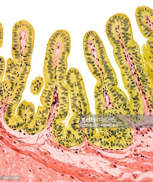 Gall bladder lining, light micrograph