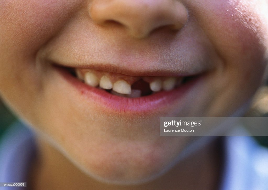 Gap-toothed smile : Foto stock