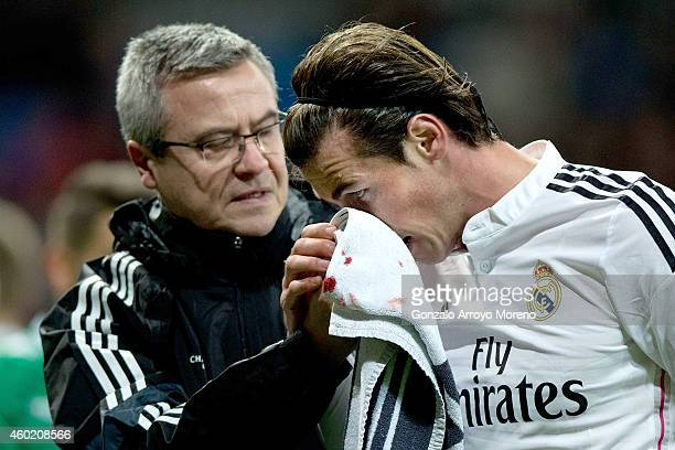 Gareth Bale of Real Madrid CF press his nose no avoid bleeding assited by medical staff after being tackled by Alexandre Barthe of PFC Ludogorets...