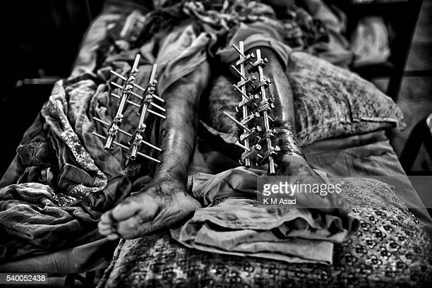 A garment worker fights for life in pongu hospital in Dhaka Bangladesh July 21 2013 Over 290 unclaimed bodies were buried after the DNA samples were...