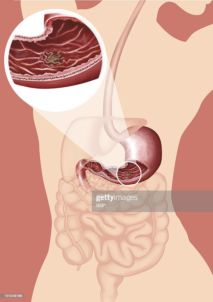 Gastric Ulcer, Drawing : News Photo