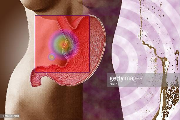 Gastric Ulcer Drawing