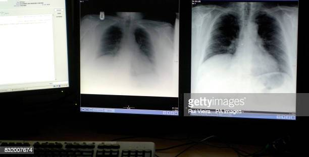 Generic stock picture of a chest Xray at Derby City Hospital