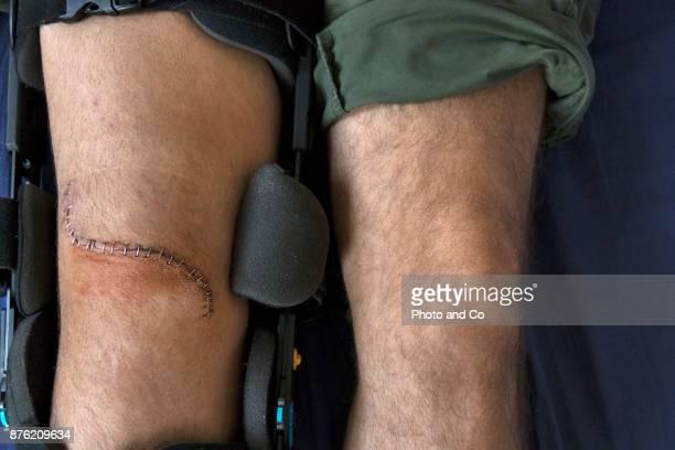 Genou remplacement incision series