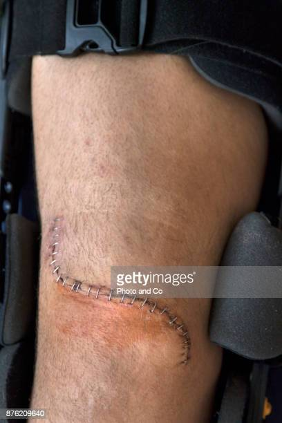 genou remplacement incision series - surgery stitches stock photos and pictures