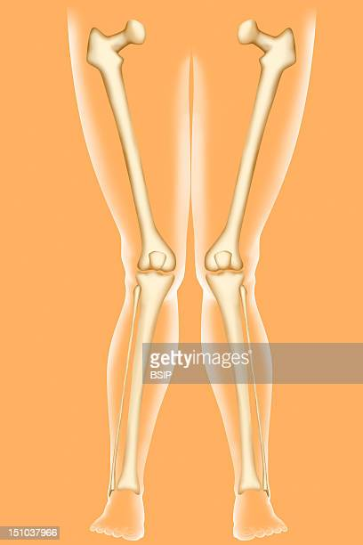 Genu Valgum Knock Knees Genu Valgum Is A Difformity Of The Lower Limbs Coresponding To A Deviation Toward The Outer Side Of The Leg The Knees Bulge...