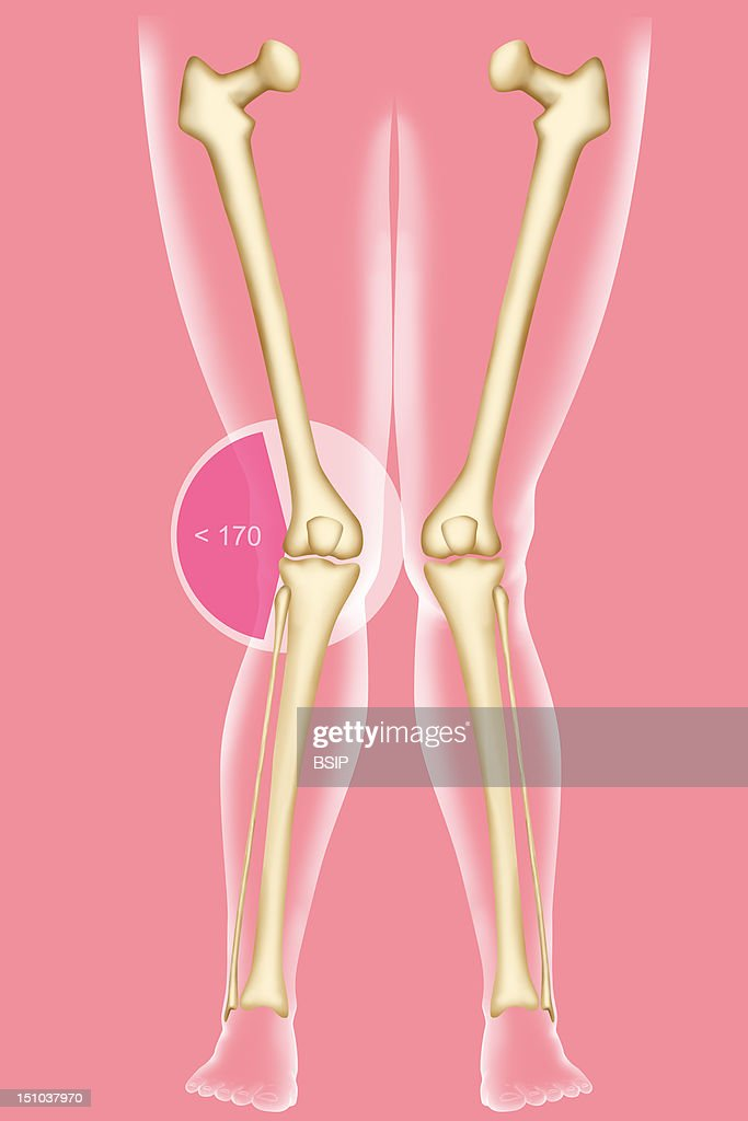 genu valgum knock knees genu valgum is a difformity of the lower limbs coresponding to
