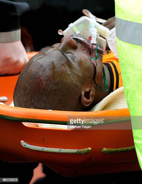 George Boateng of Hull is stretchered off with an oxygen mask following a kick in the head during the Barclays Premier League match between Stoke...