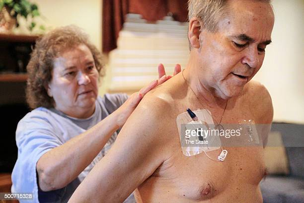 George 'Smitty' Anderson receives painrelieving Fentanyl patches on his back from his wife Pam inside their home in Augusta Ga on Aug 22 2015 He died...