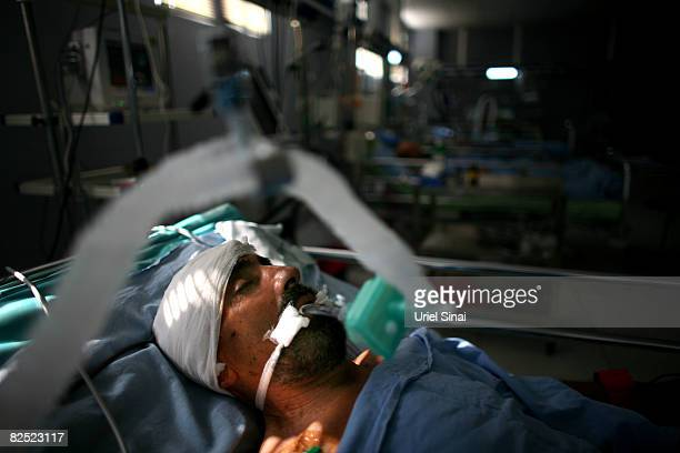 Georgian patient that was wounded at a village on the border with South Ossetia is connected to a ventilation machine at the intensive care unit...