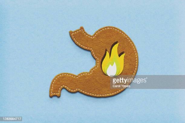 gerd text and medical items in felt - refluxo gastro esofágico imagens e fotografias de stock