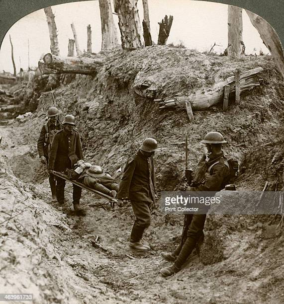 German prisoners carrying British wounded World War I 1916 During the assault on Trones Wood part of the Battle of the Somme Stereoscopic card detail