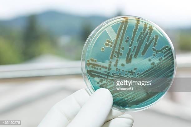 Germany, Freiburg, Human hand holding petri dish with bacteria, close up