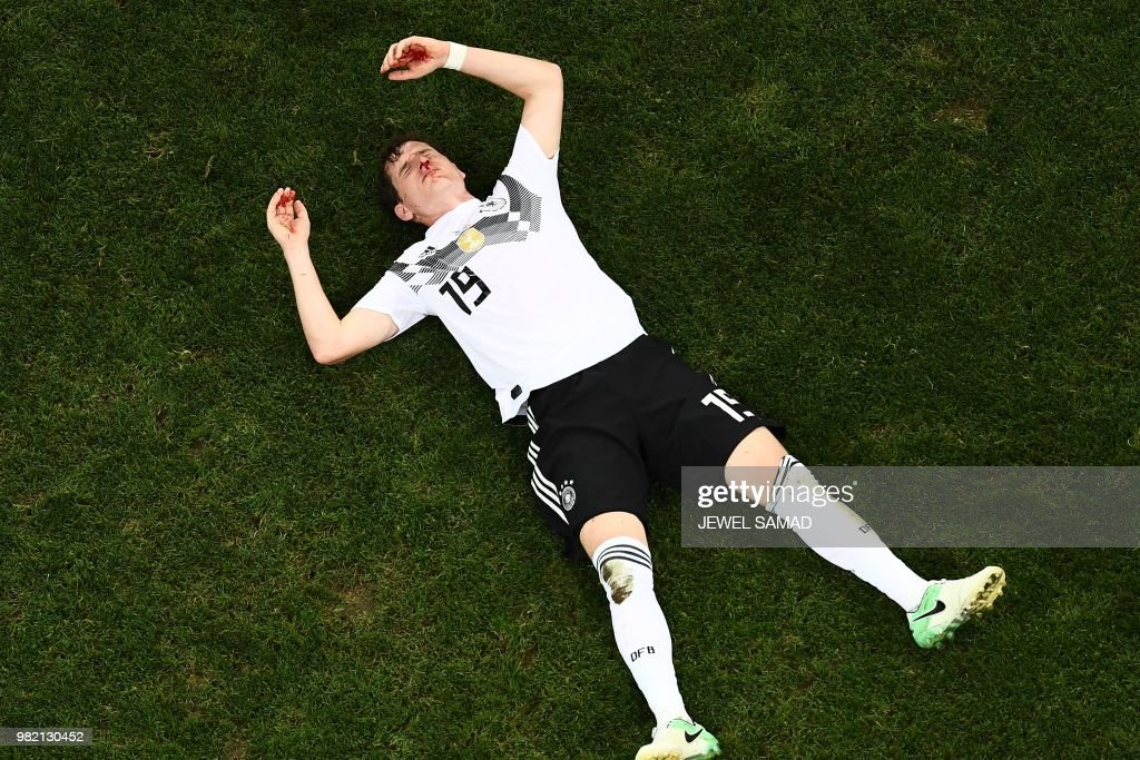 TOPSHOT - Germany's midfielder Sebastian Rudy awaits medical attention following a collision during the Russia 2018 World Cup Group F football match between Germany and Sweden at the Fisht Stadium in Sochi on June 23, 2018. (Photo by Jewel SAMAD / AFP) / RESTRICTED