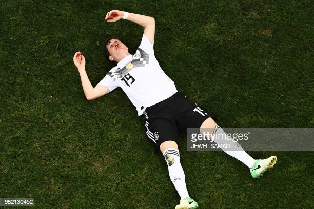 TOPSHOT Germany's midfielder Sebastian Rudy awaits medical attention following a collision during the Russia 2018 World Cup Group F football match...
