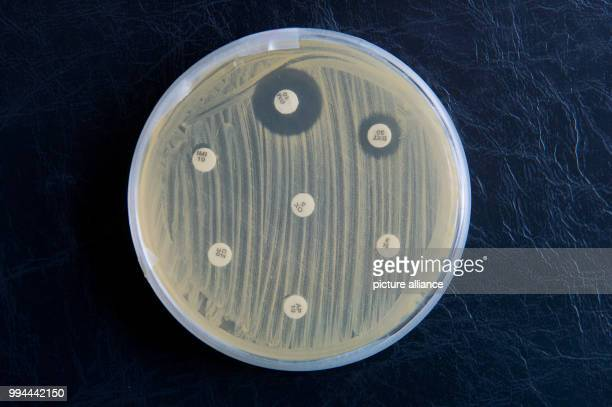 MRSA germs can be seen in a petri dish at the Institute for Hygiene and Public Health in Hamburg Germany 19 September 2017 The white platelets pass...